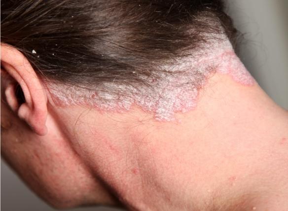 krém a bőr helyreállítására a pikkelysömör után