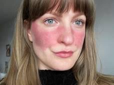 hogyan kell kezelni a pikkelysömör véleményt a bőrön megjelenő vörös foltok oka