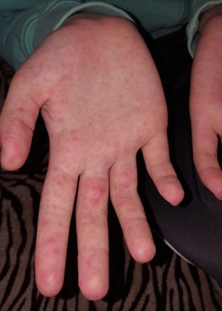 miért jelennek meg a kezén vörös foltok, amelyek viszketnek
