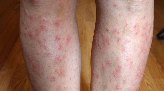miért jelennek meg vörös foltok a karokon és a lábakon vörös foltok a lábakon viszketés kezelés fotó