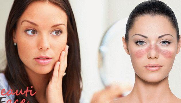méz az arcon lévő vörös foltokért vörös foltok az arcon hámozzák le a kezelési fotót