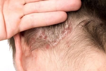 pikkelysmr tnetei s kezelse a fejn a seborrhea s a pikkelysmr kezelsre