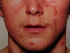 hogyan kezelik a könyök pikkelysömörét? vörös foltok a lábszáron, cukorbetegségben