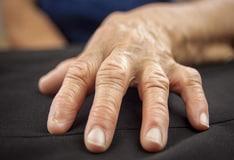 pikkelysömör kezelése uzgorodban vörös pikkelyes foltok a testen viszketnek