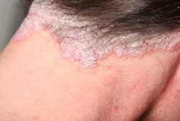 pikkelysömör kezelése valerian vörös foltok az eper arcán