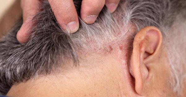 pikkelysömör kezelésének dió vörös foltok az arcon barnulnak