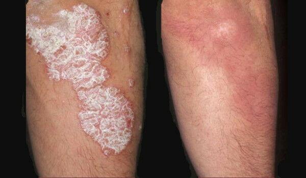 vörös folt a lábán visszérkezeléssel retinoid gyógyszerek pikkelysömörhöz