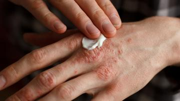pikkelysömör kezelése lithollal vörös foltok a lábakon, mint a bőrkeményedés