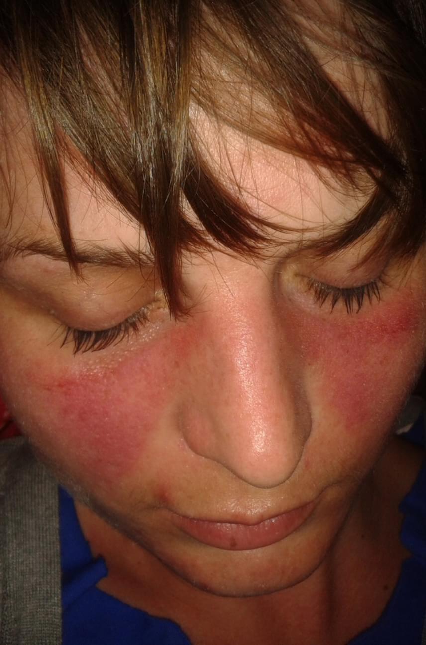 piros folt jelent meg a gyomorfotón viszketés és vörös foltok az ujjakon