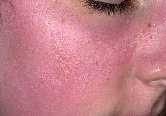 piros foltok az arcon pontok formájában gyömbér pikkelysömör kezelésére