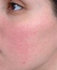 piros foltok pöttyökkel az arcon