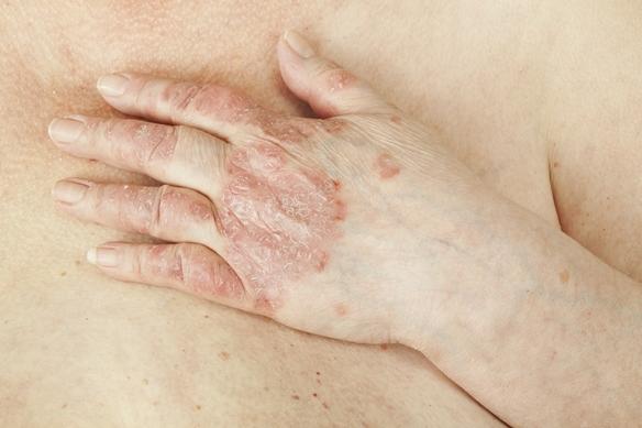puwa terápia a pikkelysömör kezelésében