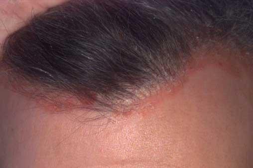 vörös foltok az arcon kerekek bőrkiütés vörös foltok formájában a lábakon felnőtteknél