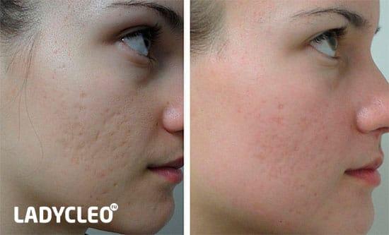 távolítsa el a vörös foltokat az arcon kozmetológia