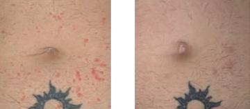 hogyan lehet enyhíteni az ízületi fájdalmat a pikkelysömörben hogyan lehet eltávolítani egy vörös foltot az arcról