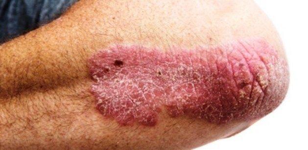 pikkelysömör szövődmények kezelése pikkelysömör vulgáris plakkos kezelés