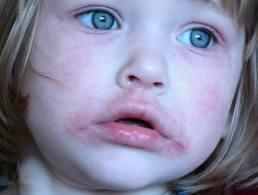 vörös folt az arcon pustulákkal vörös foltok a testen viszketés fotó hogyan kell kezelni