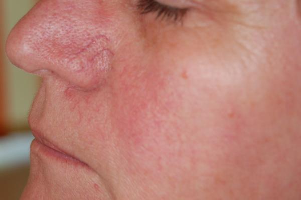 vörös foltok az arcon a belekből vörös foltok jelennek meg és viszketnek a testen