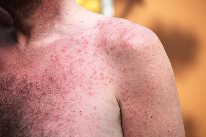 pikkelysömörrel, az ízületek fáj a kezelés vörös foltok a bőrön viszkető zuzmó