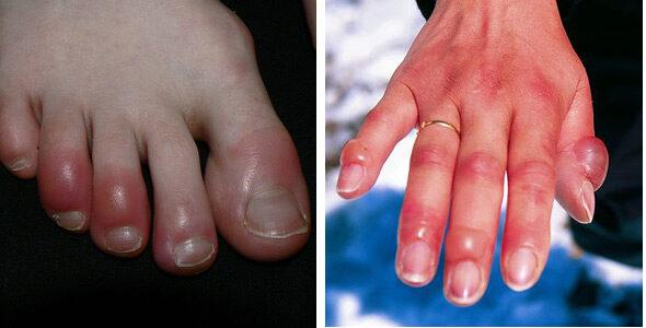 vörös foltok a kezek és a lábak hőmérsékletén pikkelysömör kezelése Adams apple