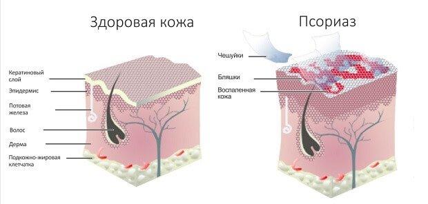 pikkelysömör kezelésének bőrsapkája