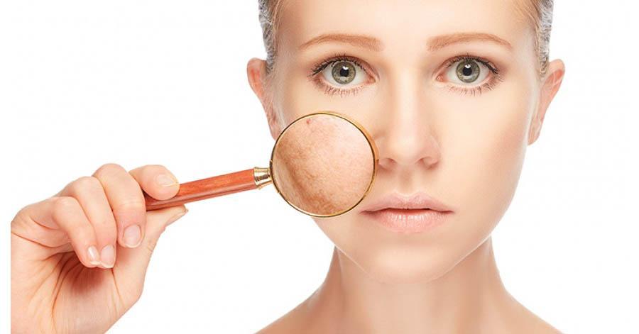 hogyan gyógyíthatók meg a bőrön lévő vörös foltok pikkelysmr kezels biolgiai