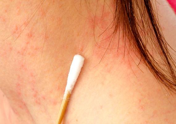 vörös foltok hámlanak le az állról humira pikkelysömör kezelésére
