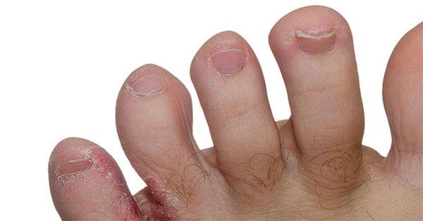 vörös foltok az ujjak belső oldalán vörös foltok a nők hasán