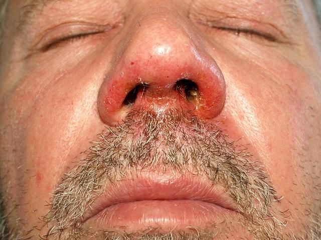 krém a bőr helyreállítására a pikkelysömör után a bőrön kerek piros folt viszket