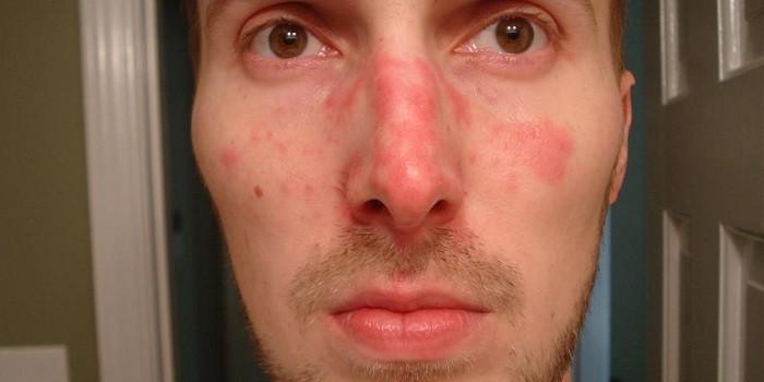 vörös foltokkal borított arc a férfiaknál