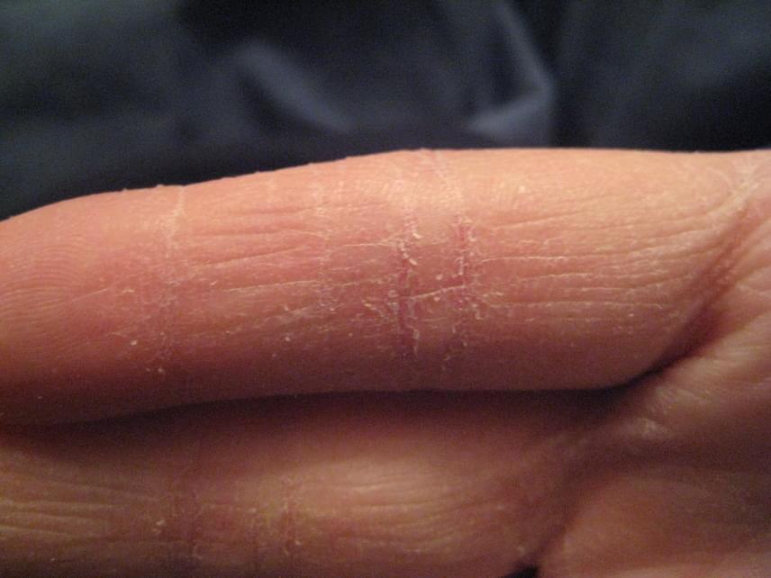 vörös száraz foltok a kezeken hámozódnak