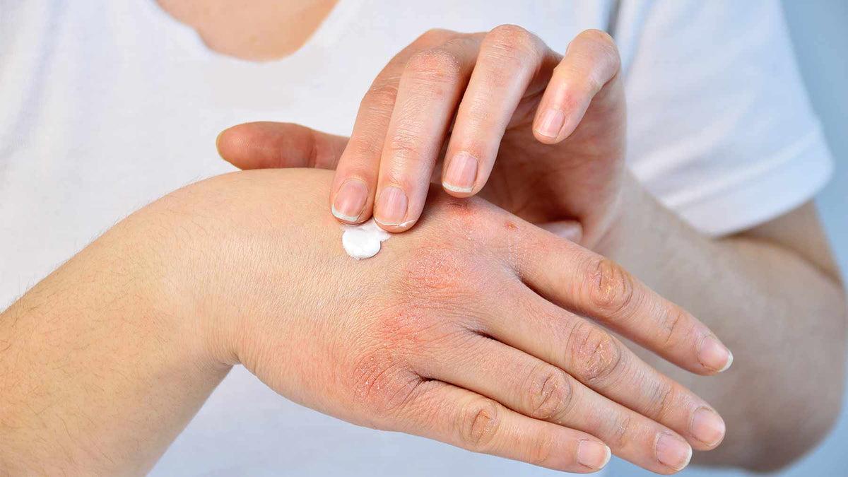 pikkelysömör szövődmények kezelése csepegtető pikkelysömör és kezelése