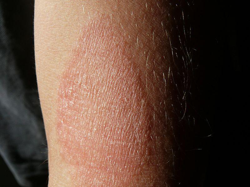nagy örök pikkelysömör kezelés vörös folt a lábán pikkelyesedik