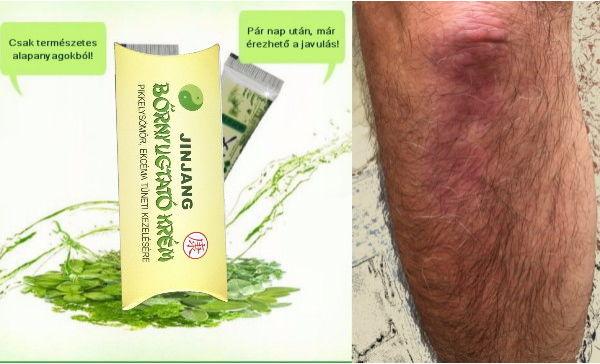 kenőcs pikkelysömör ekcéma dermatitis amit viszket, akkor vörös foltok jelennek meg a testen