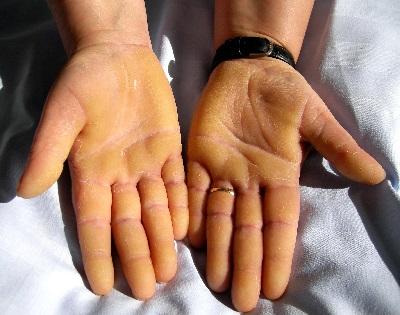 a kezén élénkpiros foltok viszketnek