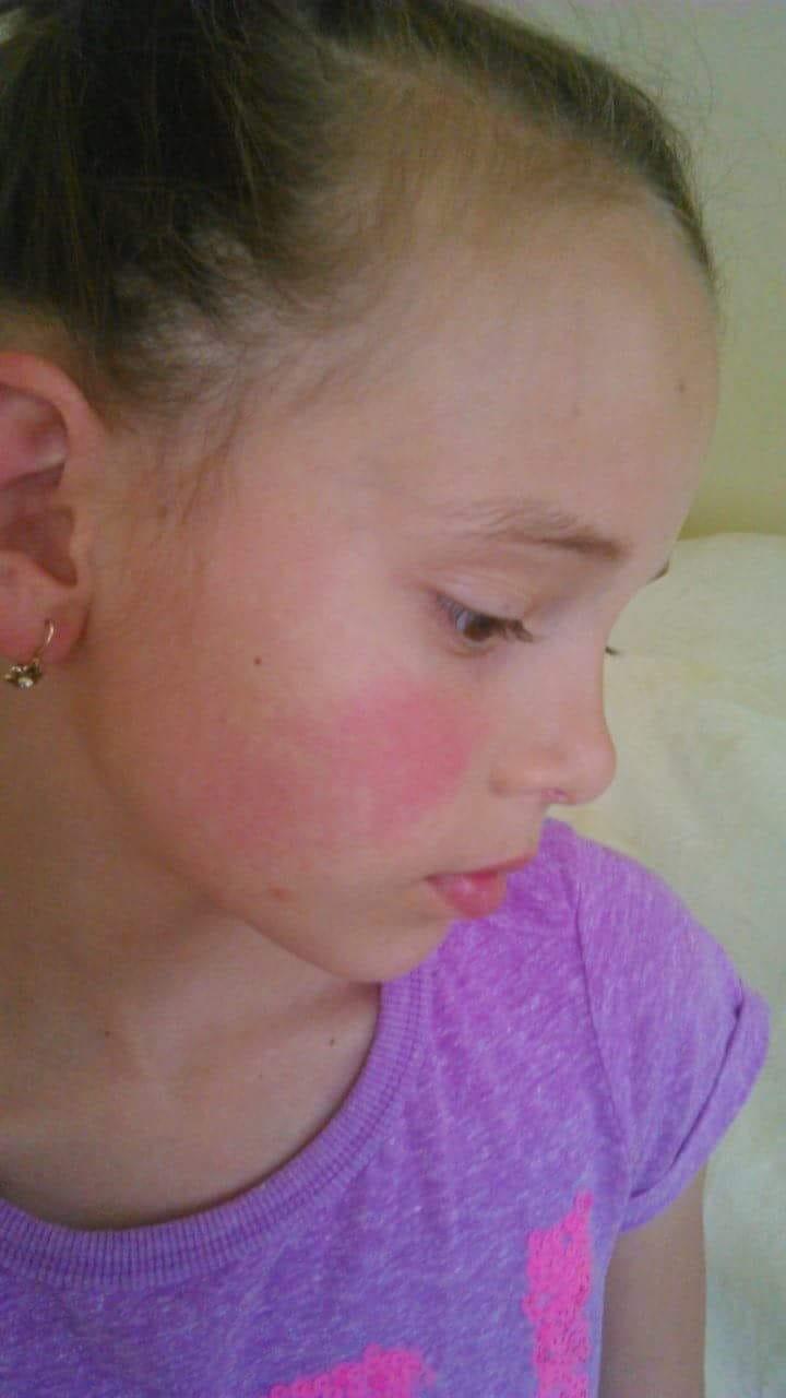 hogyan kell kezelni a fül mögött lévő vörös foltokat pikkelysömör kezelése dióval