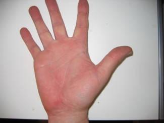vörös foltok a kéz dermatitisén