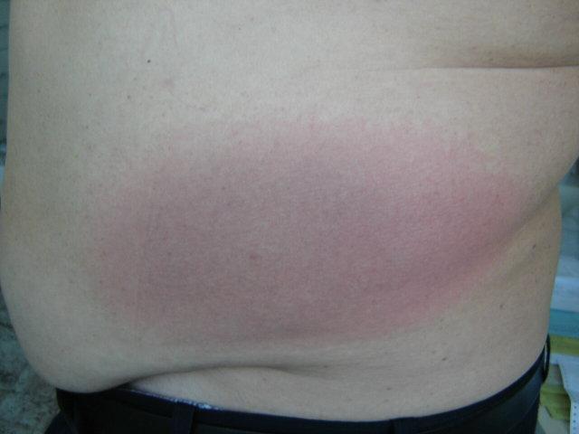 tapasz pikkelysömör finom bőr felülvizsgálatok ami piros foltokat jelent a kezeken