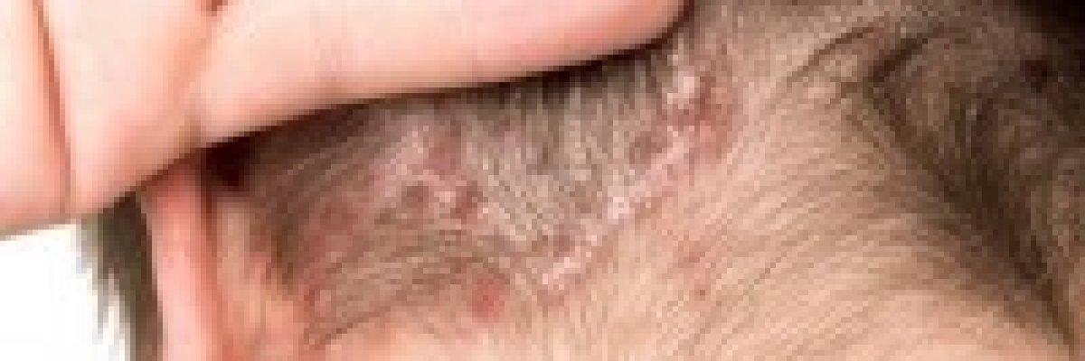 hogyan kell kezelni a fül mögött lévő vörös foltokat gyógyszerek pikkelysömör