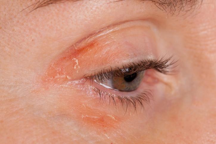 a szem alatti arcon vörös folt jelent meg