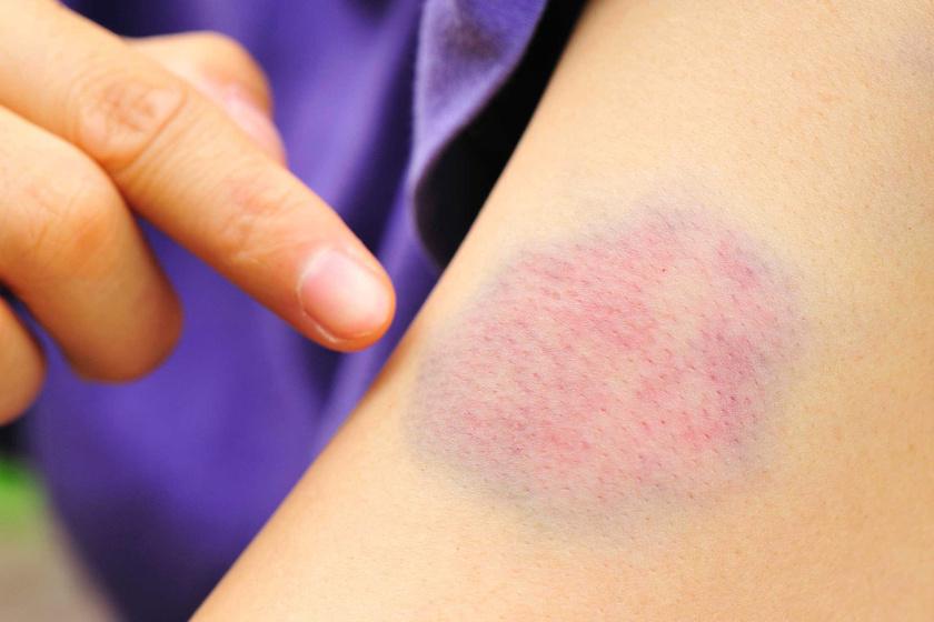 Piros és viszkető pöttyök, kiütések: mi okozza őket? - EgészségKalauz