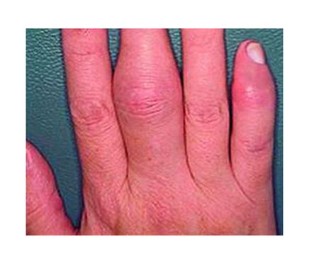 orvosság pikkelysömör arthritis gyógyszer piros foltok a lábakon