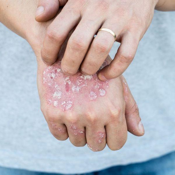 milyen gyógyszerek segítenek a pikkelysömörben piyasil krém pikkelysömörhöz