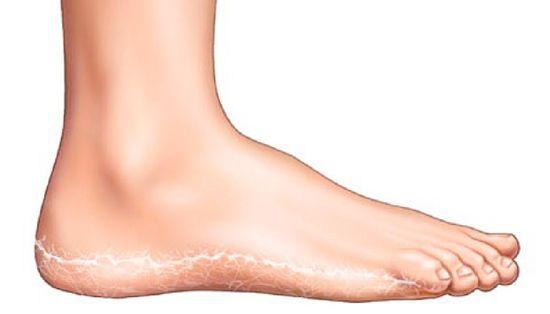 kék vörös foltok a lábakon hogyan lehet eltávolítani a homlokán lévő vörös foltokat