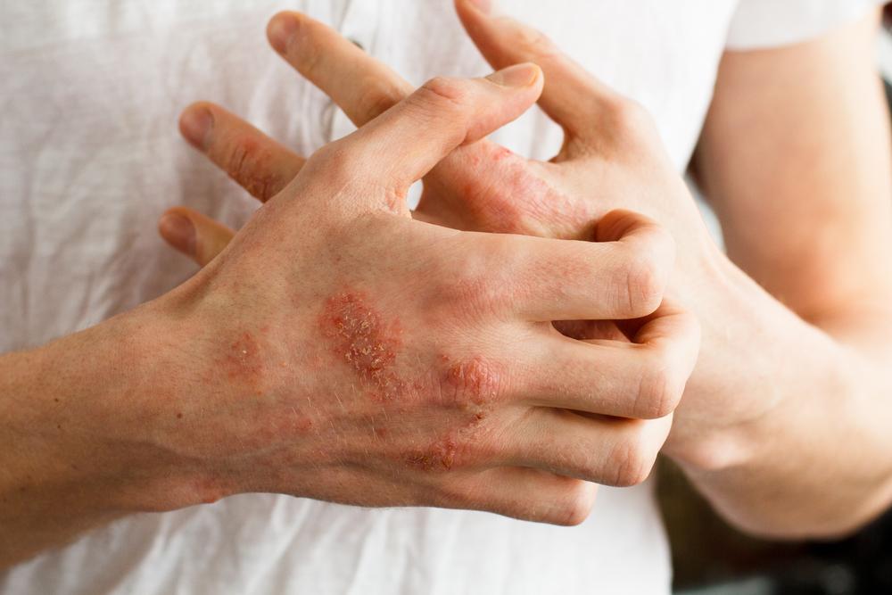 Kenőcsök dermatitis és pikkelysömör ellen