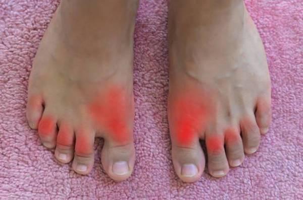 vörös folt ugrott a lábfotón)