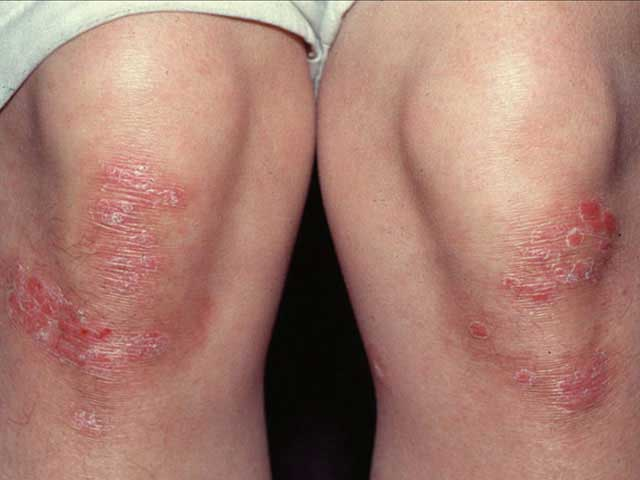 milyen gygyszerek a pikkelysmr kezelsre a testen szisztémás kezelés a pikkelysömörhöz