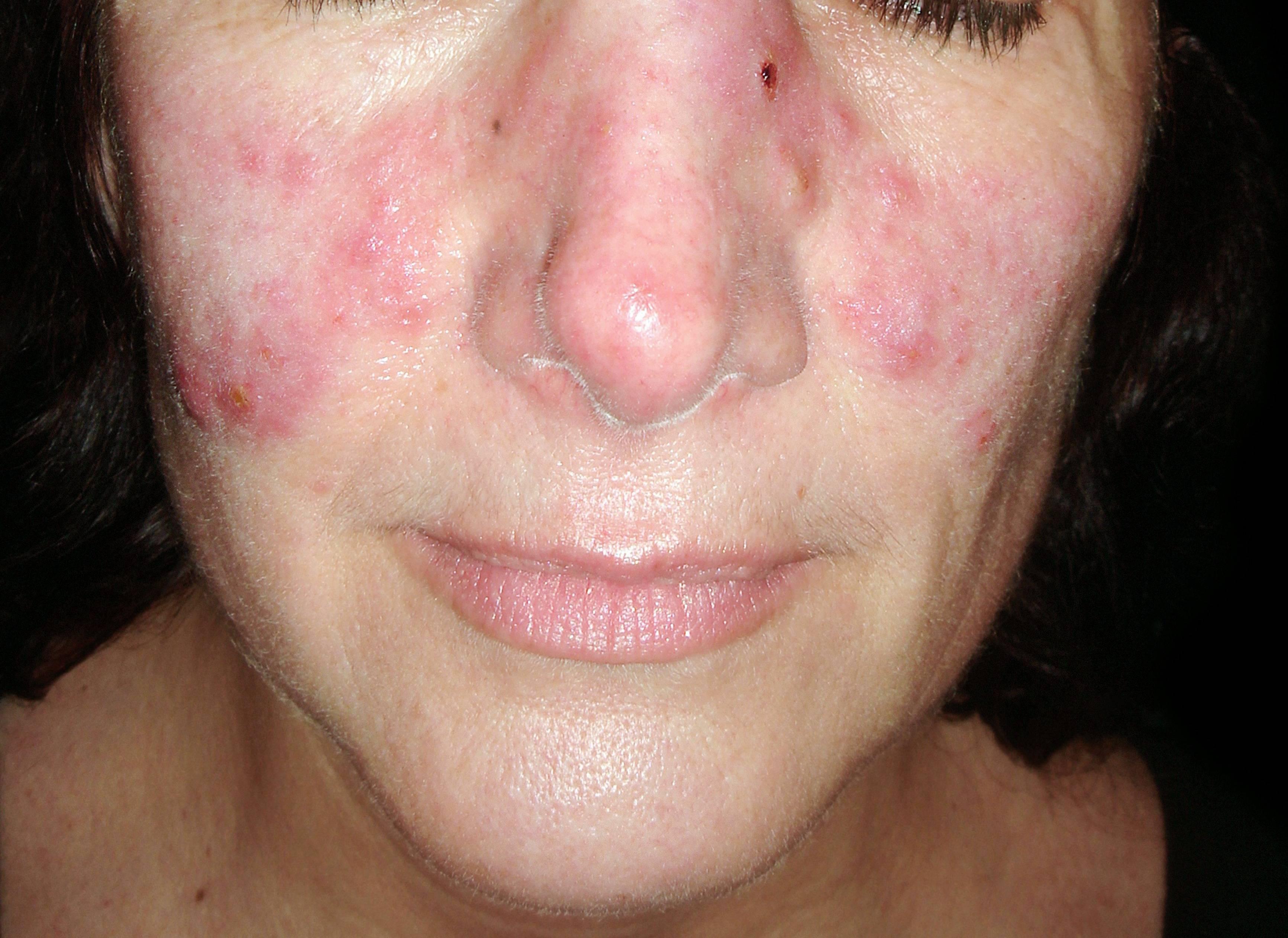 vörös foltok az arcon kiütés formájában