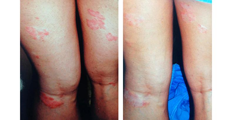 vörös foltok és viszketés a kezeken fotótünetek