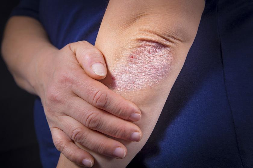 vírusos bőrbetegségek piros folt a tenyéren viszket fénykép